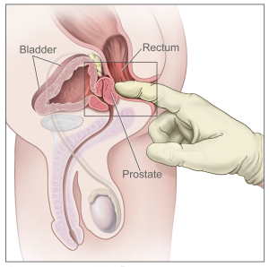 Digital rectal exam: side view of the male reproductive and urinary anatomy, including the prostate, rectum, and bladder.  Image from Wikipedia