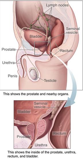 Prostatelead[1]