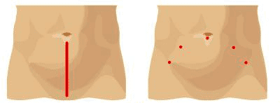 Comparing incisions
